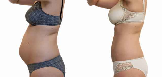 Abdominoplastia fotos antes y despues 01
