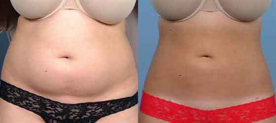 Abdominoplastia fotos antes y despues 02