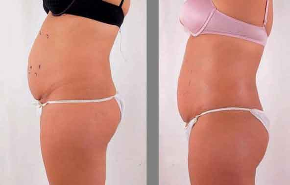 Abdominoplastia fotos antes y despues 03