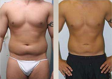 Abdominoplastia fotos antes y despues 05