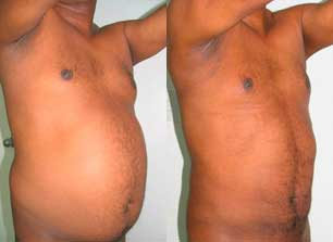 Abdominoplastia fotos antes y despues 06
