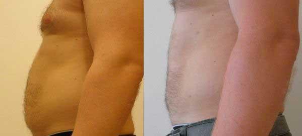 Abdominoplastia fotos antes y despues 07