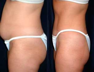 Abdominoplastia fotos antes y despues 08