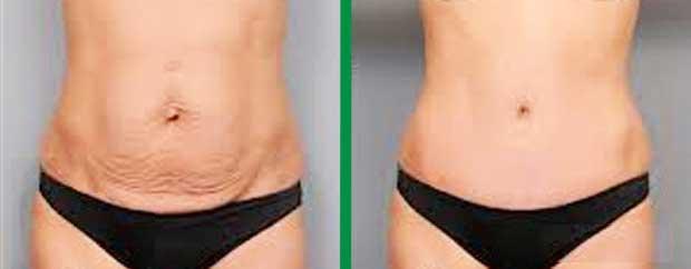 Abdominoplastia Fotos antes y después foto 10